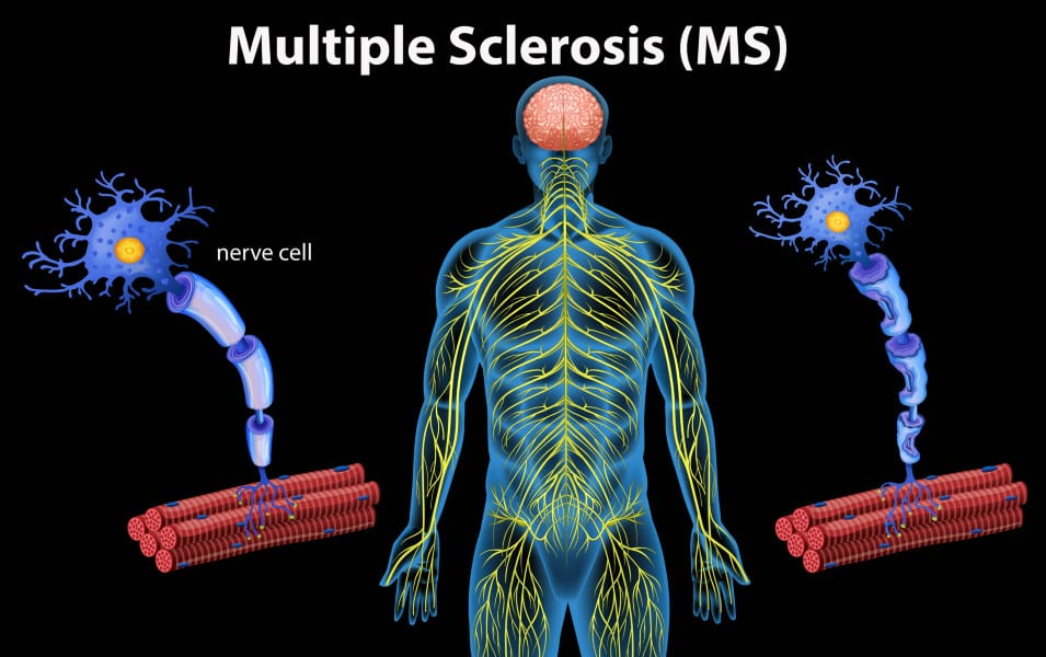 Study Sees Slower MS Progression Thanks to Medical Advances