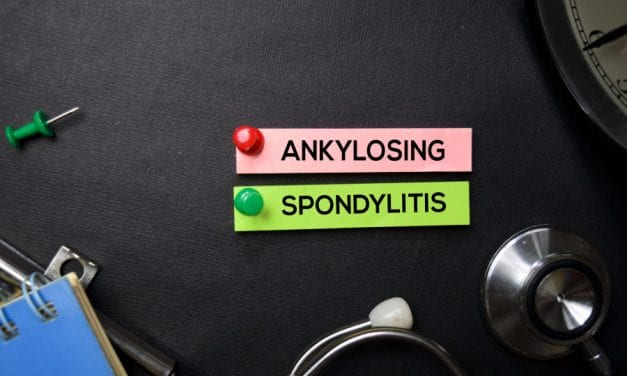 Improve Ankylosing Spondylitis Outcomes with Physiotherapy