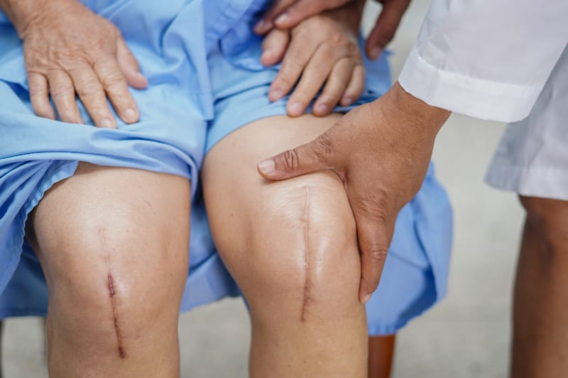 Joint Replacement Surges After Medicaid Expansion