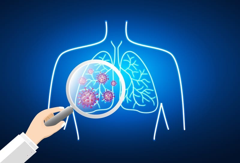 How Lung Scans Could Provide Earlier COVID-19 Detection for Stroke Patients