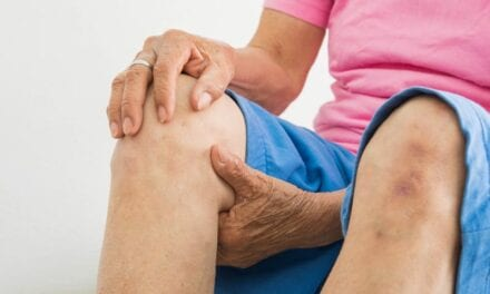 Consensus Document Offers Recommendations for Treating Knee Osteoarthritis