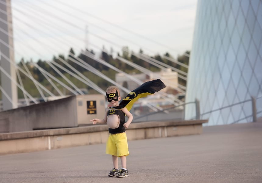 6-Year-Old Goes Full Superhero in Corrective Cast