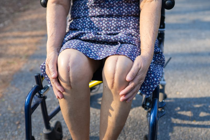 Reconsider Delaying Joint Replacement Surgery. Here's Why