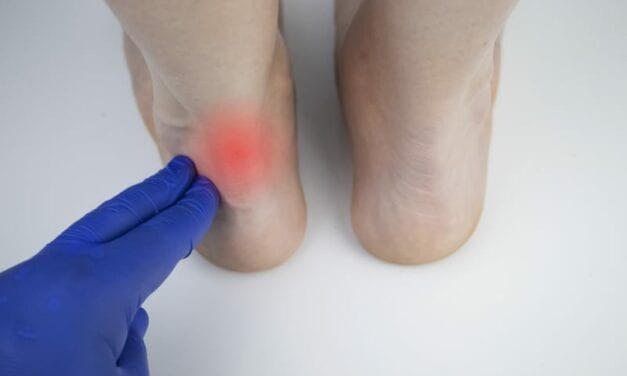 How Achilles Tendon Shape Differences Could Affect Injury Susceptibility