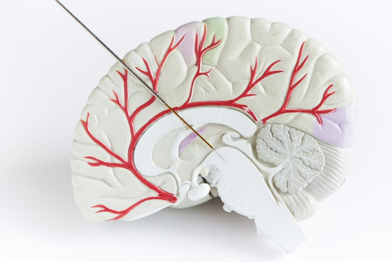 New Deep Brain Stimulation Approach for Parkinson's Offers Promising Results